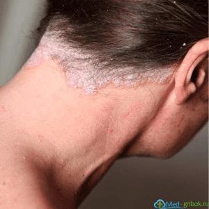 псориаз волосистой части головы фото