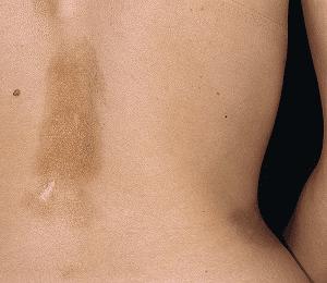 склеродермия фото
