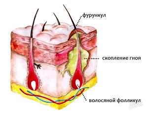 Причины фурункулеза у взрослых