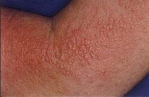 Что делать если аллергия на солнце? Чем лечить в этом случае?