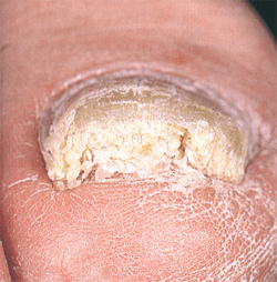симптомы грибка ног