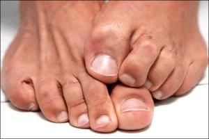 грибок ногтей лечение