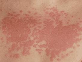Аллергия на солнце что делать