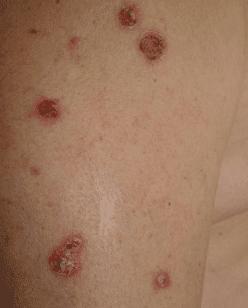 Угроза жизни при кожном заболевании - болезнь пузырчатка