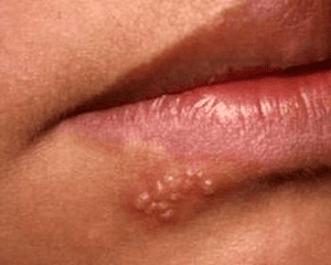 virus-gerpesa