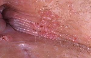 Что такое остроконечные кондиломы у женщин, причины, лечение