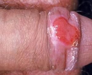 proyavleniya-sifilisa