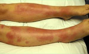 Узловая и узловатая эритемы на ногах - лечение этой болезни