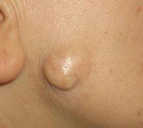 Атерома что это такое и как это лечить и без операции