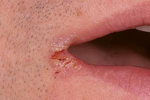 хейлит на губах