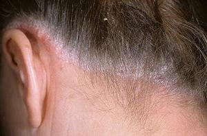 себорейный дерматит волосистой части головы