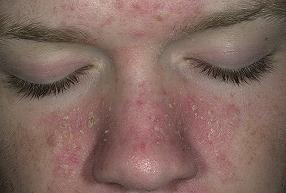 себорейный дерматит на лице лечение