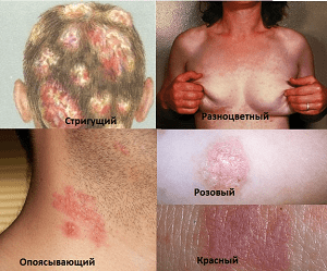 Какими видами лишая заболевает человек и его лечение
