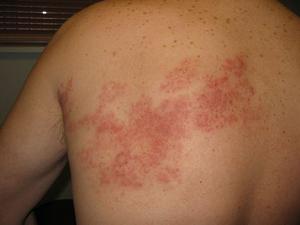 опоясывающий лишай заразен или нет