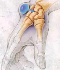 Гигрома кисти руки - причины, симптомы и лечение